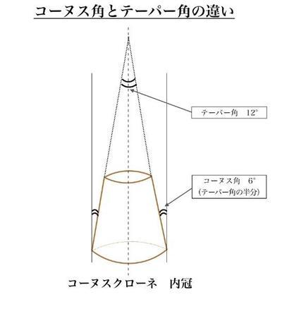 コーヌスクローネのご紹介〜コーヌス角とテーパーの違いについて〜