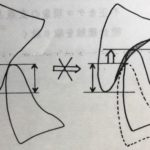 咬合調整の基本原則その3〜バーティカル・ディメンション〜