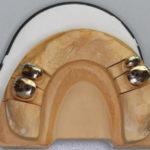 レジリエンツテレスコープ内冠の試適、外冠印象方法について