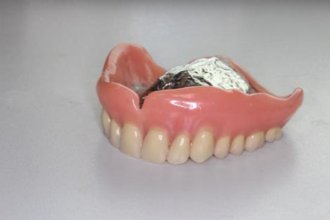 仮義歯の重要性