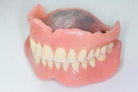 患者様の口腔内は変化します。