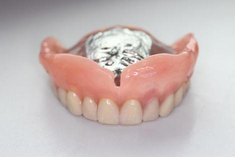 力強い笑顔、好感の持てる口元を作り出す歯科技工士