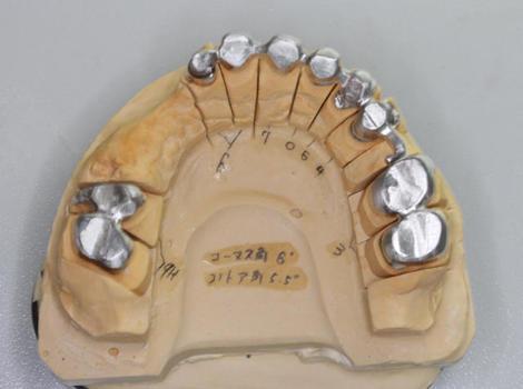 全顎リーゲルテレスコープ内冠試適、外冠印象方法について