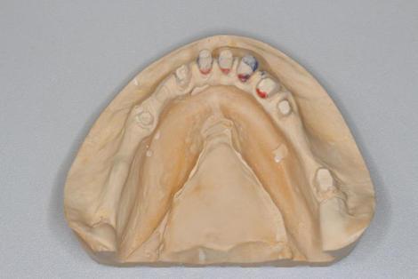 下顎コーヌスクローネの形成の注意点、印象の採り方について
