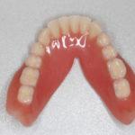 高齢者の総義歯について